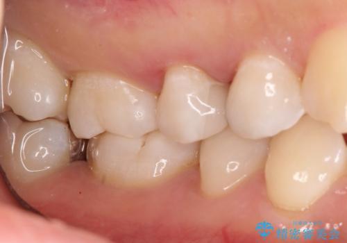 【セラミックインレー】むし歯の治療の治療後