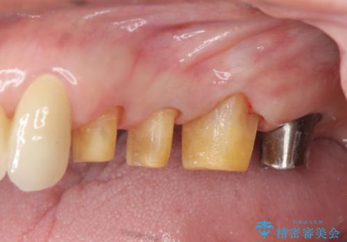 歯ぎしりに抵抗する歯周補綴 インプラント補綴の治療中