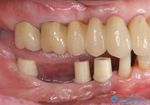重度の虫歯 インプラント治療の治療中