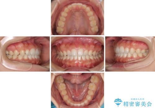 気になる隙間の再矯正 前歯をインビザライン・ライトで改善の治療中