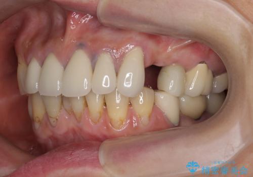 [ノンクラスプデンチャー]  バネの見えない審美的な入れ歯の症例 治療前