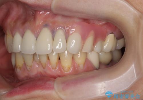 [ノンクラスプデンチャー]  バネの見えない審美的な入れ歯の症例 治療後