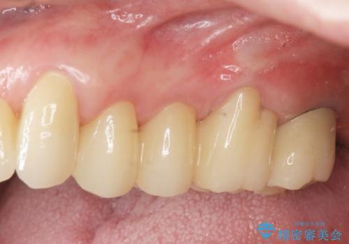 歯周病治療&インプラント治療の症例 治療後