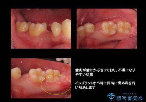 20代男性 奥歯のインプラント 自分の骨を移植の治療前