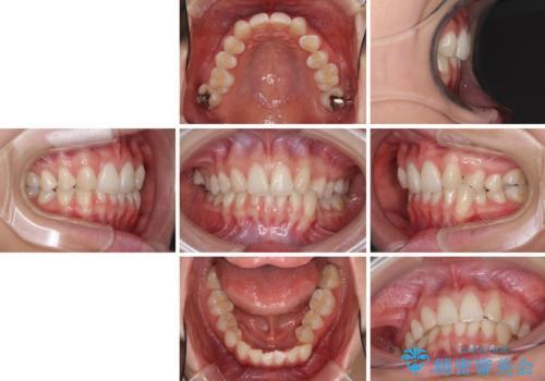 上顎前歯が2本欠損 インビザラインによる叢生の解消の治療前