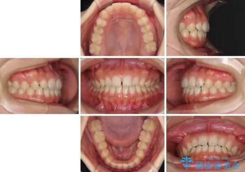 気になる隙間の再矯正 前歯をインビザライン・ライトで改善の治療前