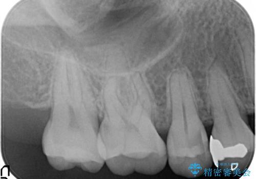 【セラミックインレー】むし歯の治療の治療前