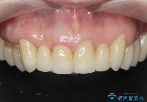 不自然な前歯ブリッジ ジルコニアブリッジによるやり替えの治療後