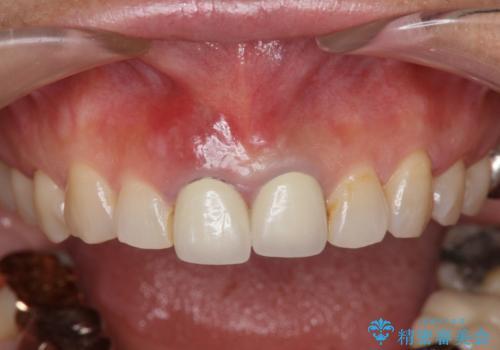 [抜歯時の顎堤保存]  審美的なブリッジ製作の治療中