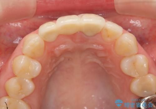 [抜歯時の顎堤保存]  審美的なブリッジ製作の治療後