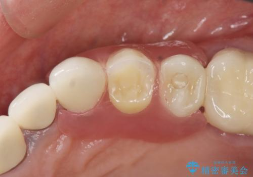 [ノンクラスプデンチャー]  バネの見えない審美的な入れ歯の治療後