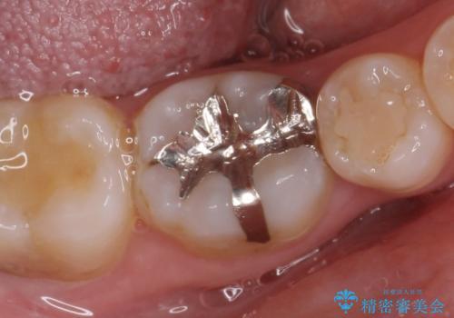 セラミックインレー 銀歯から白い歯への治療前