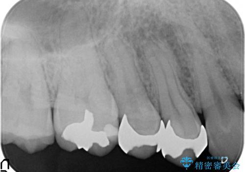 セラミック治療 銀歯を白い歯への治療前