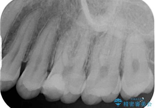他院で神経を取ると言われた 神経を極力残した虫歯治療の治療前