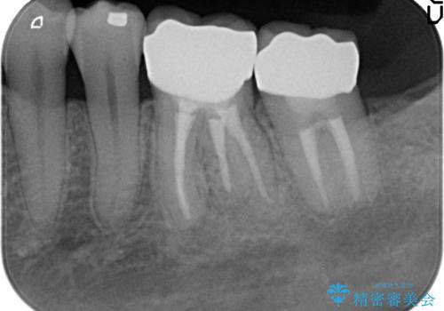 オールセラミッククラウン 激しく痛む歯の再根管治療の治療後