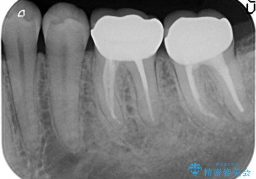 オールセラミッククラウン 咬むと痛む奥歯の治療の治療後