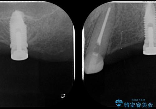 「しっかり噛める入れ歯」インプラントオーバーデンチャーの治療後