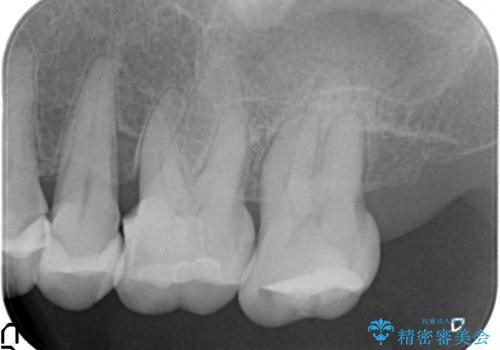 歯ぎしりに抵抗する歯周補綴 インプラント補綴の治療前