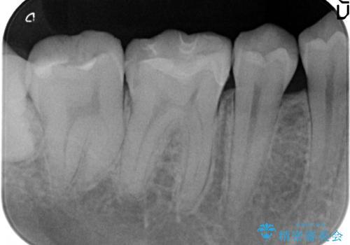 セラミックインレー 気になる銀歯を白い歯への治療後