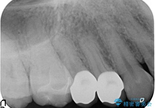 セラミック治療 銀歯を白い歯への治療後