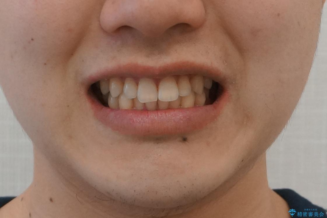 すきっ歯・出っ歯が気になる インビザライン矯正 乳歯をインプラントにの治療後(顔貌)