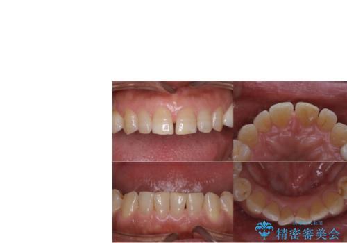 短期間で集中的に全顎治療の治療後