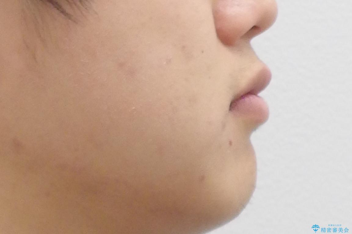 すきっ歯・出っ歯が気になる インビザライン矯正 乳歯をインプラントにの治療前(顔貌)