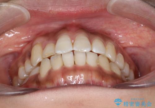 インビザラインと補助装置の併用による八重歯の抜歯矯正の治療後