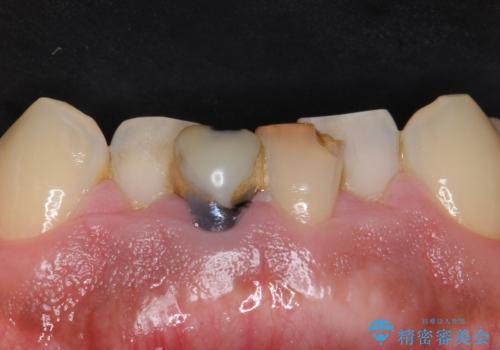 下の前歯の色が気になる セラミックで綺麗に 40代男性の治療前