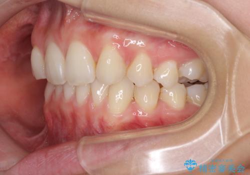 上顎前歯が2本欠損 インビザラインによる叢生の解消の治療中