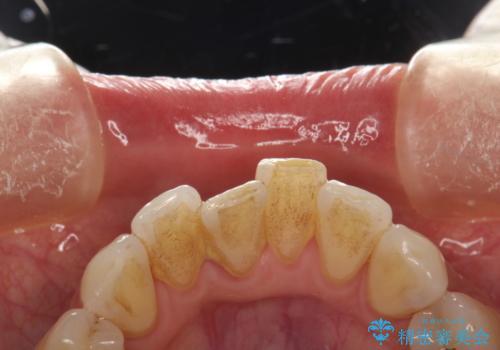 PMTCで舌ざわりをツルツルにの治療前