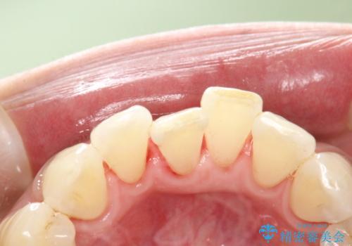 PMTCで舌ざわりをツルツルにの治療後