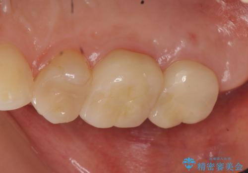 オールセラミッククラウン 虫歯治療・再根管治療の治療後