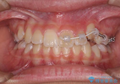 埋もれた犬歯を引っ張り出す 小学生のⅠ期治療の治療中