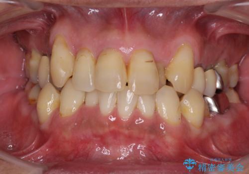 歯周病治療&矯正歯科治療の症例 治療前