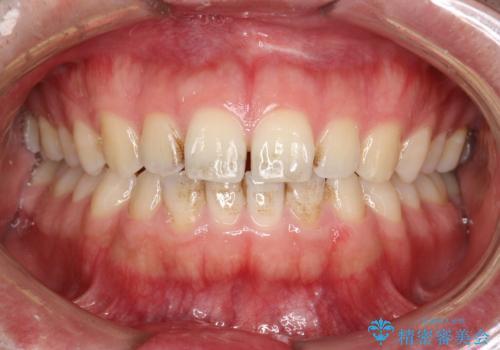PMTCで前歯の着色・ステインを綺麗にの治療前