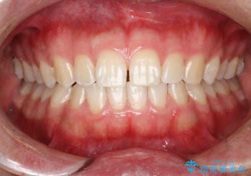 PMTCで前歯の着色・ステインを綺麗にの治療後