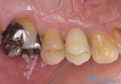 割れてしまった小臼歯 インプラントによる補綴治療の治療前