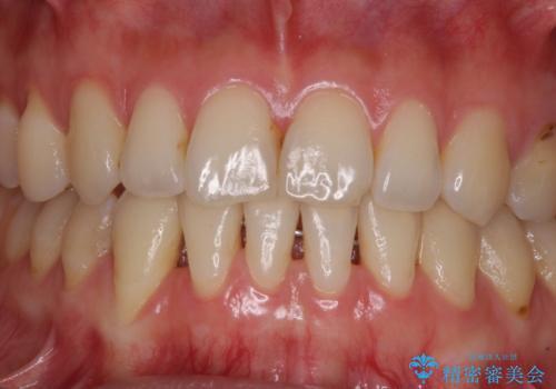 下顎前歯の歯肉退縮 歯肉移植による根面被覆の治療前