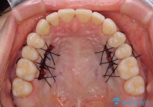 下顎前歯の歯肉退縮 歯肉移植による根面被覆の治療中