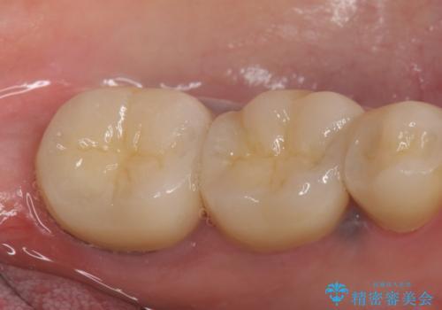 オールセラミッククラウン 治らない歯茎の腫れの治療後