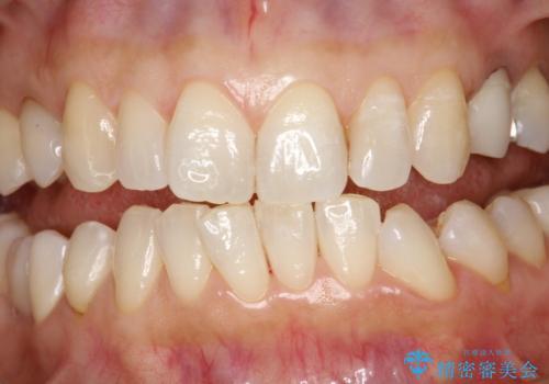 PMTCで歯と歯の間の細かいステインの除去の治療後