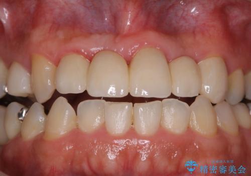 歯科衛生士によるPMTCでお口のケアの治療前