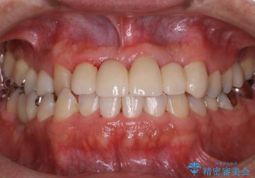 歯科衛生士によるPMTCでお口のケアの治療後