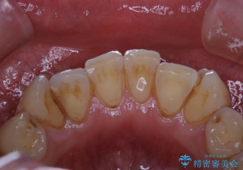 しつこい歯の着色をPMTCで1日でピカピカにの治療前