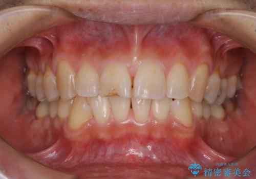 しつこい歯の着色をPMTCで1日でピカピカにの治療後