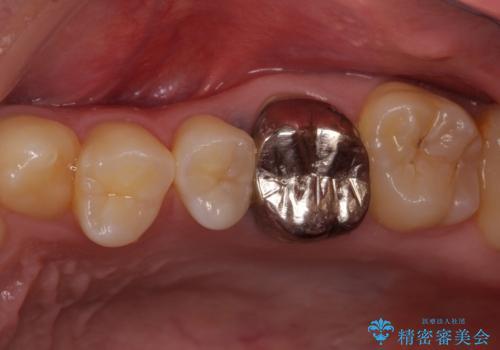 銀歯を白くしたい セラミックによる審美歯科治療の治療前