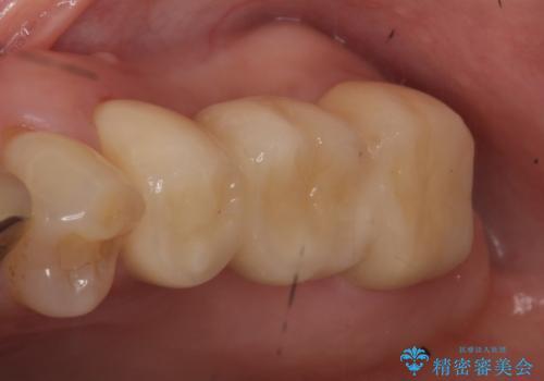 オールセラミッククラウン 抜歯になった奥歯の欠損補綴の治療後
