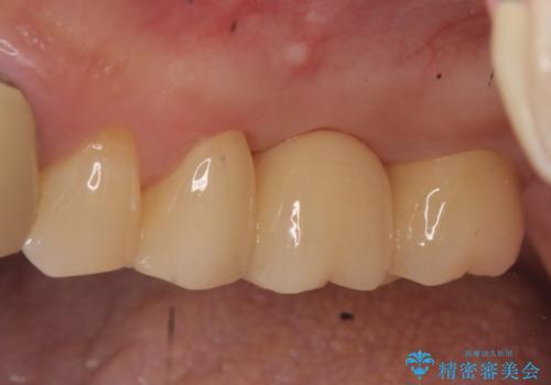 オールセラミッククラウン 抜歯になった奥歯の欠損補綴の症例 治療後