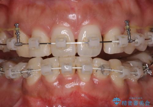 総合歯科ならではのメリット 矯正中にもPMTCをの治療前